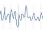 beta wave signal